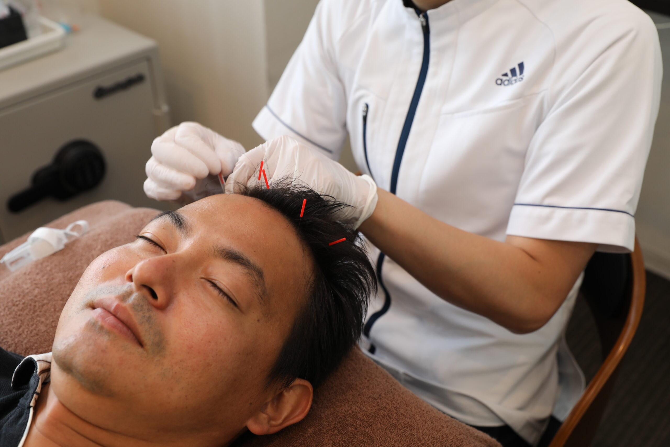 ヘルメットをかぶる仕事の男性に多い、特徴的な薄毛の原因