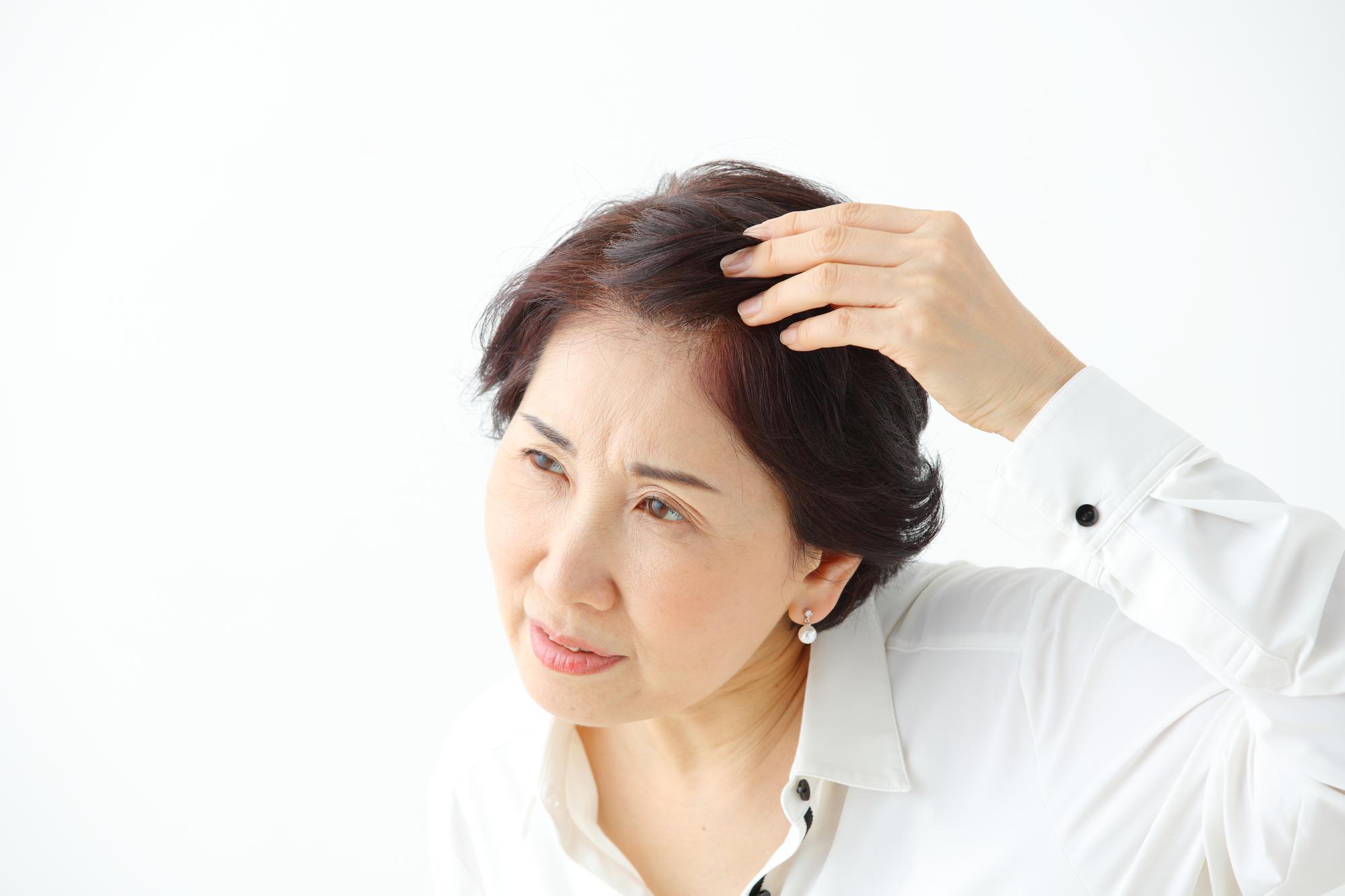 円形脱毛症がたくさんできてしまったら?放置せずに対処するのがベスト!