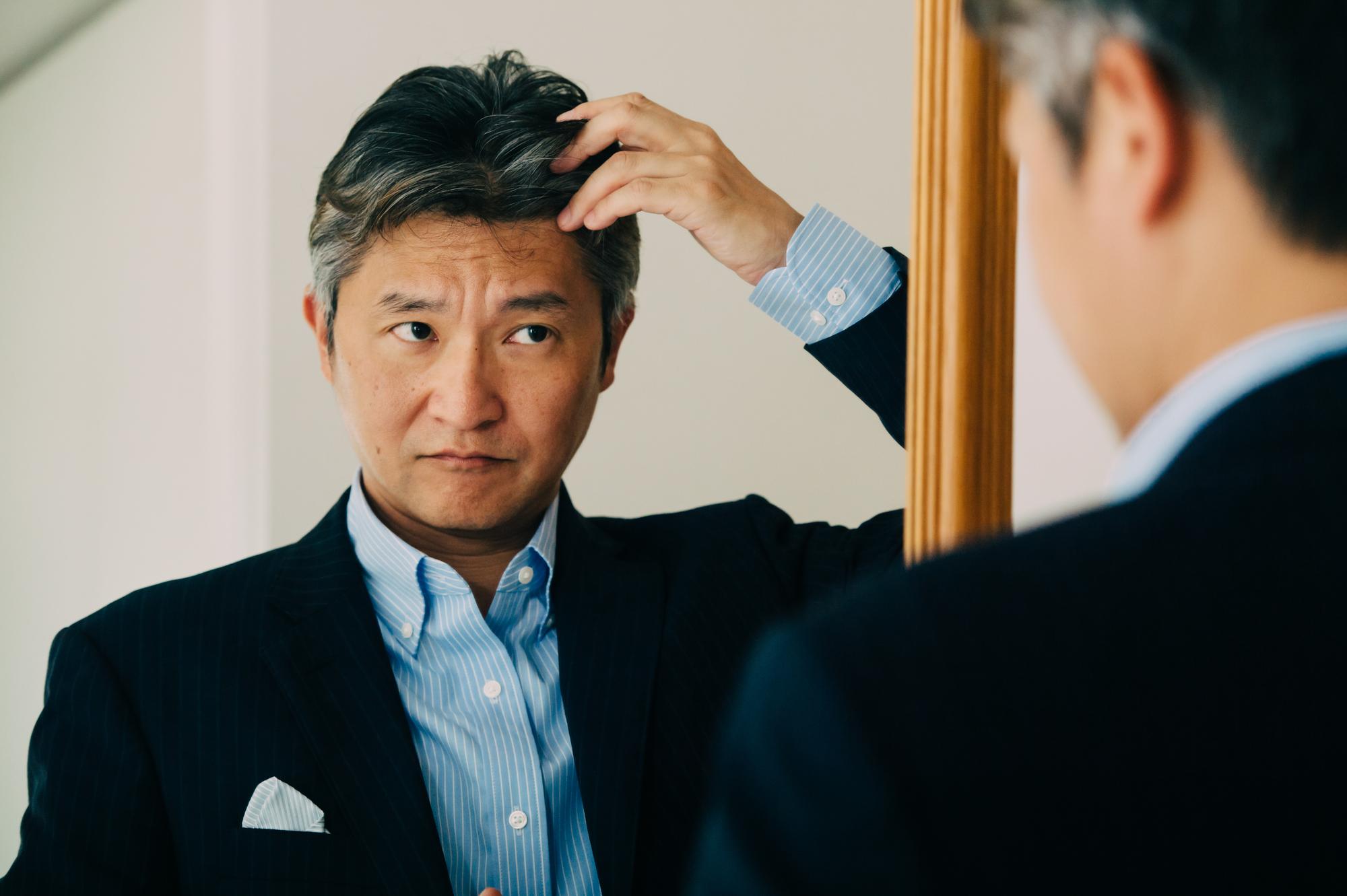 円形脱毛症には乳酸菌が良いって本当?円形脱毛症緩和と乳酸菌の関係性について