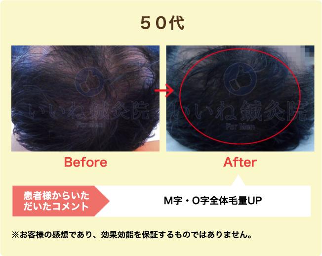 50代:M字・O字全体毛量UP
