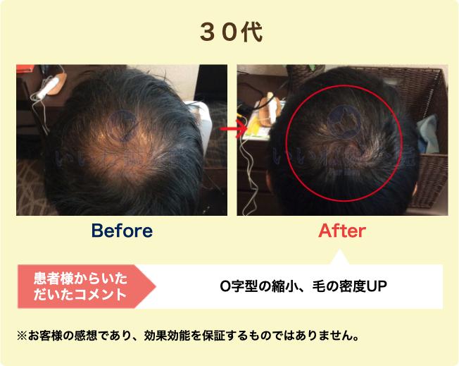 30代:O字型の縮小、毛の密度UP