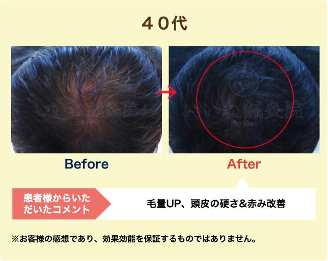 40代:毛量UP、頭皮の硬さ&赤み改善