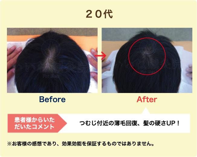 20代:つむじ付近の薄毛回復、髪の硬さUP!