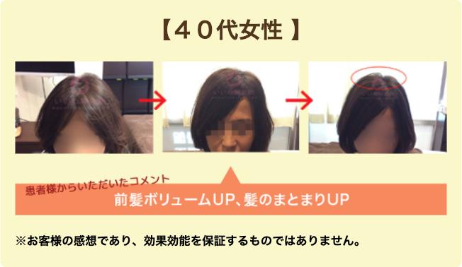 40代女性E様:前髪ボリュームUP、髪のまとまりUP