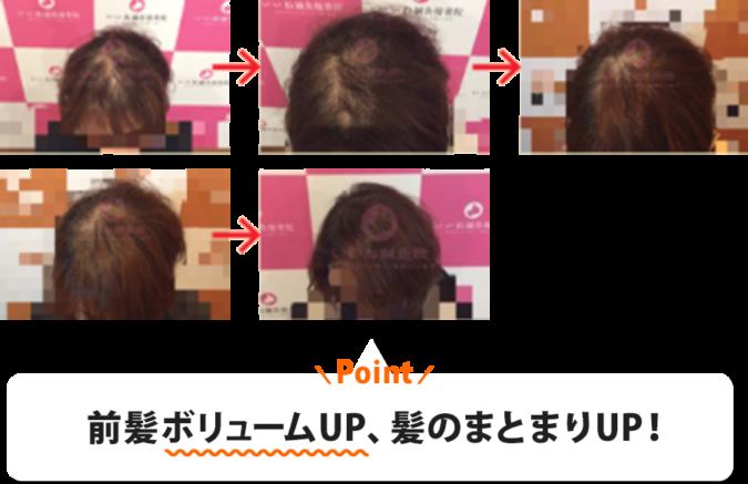 30代女性E様:前髪ボリュームUP、髪のまとまりUP