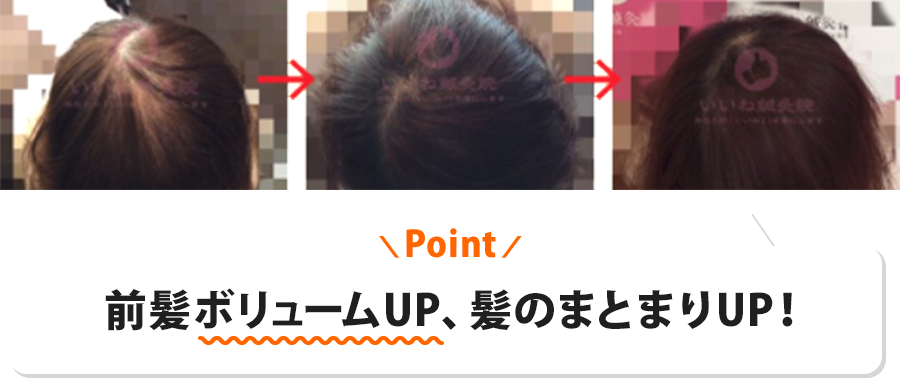 30代女性K様:前髪ボリュームUP、髪のまとまりUP